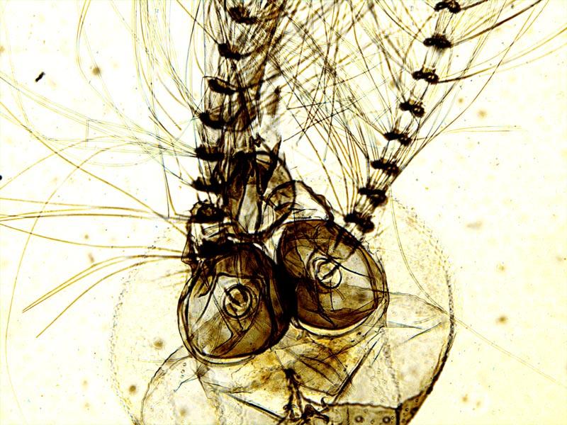 Голова комара под микроскопом Sigeta Biogenic: кратность 100x, камера Sigeta UCMOS 5.1 Mp