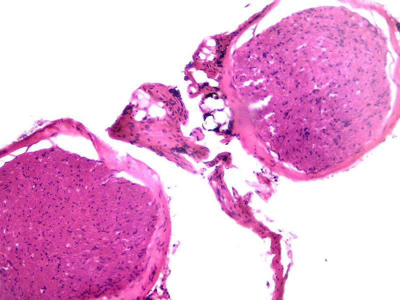 Вена человека под микроскопом Sigeta Biogenic: кратность 100x, зеркальный фотоаппарат Canon 600D