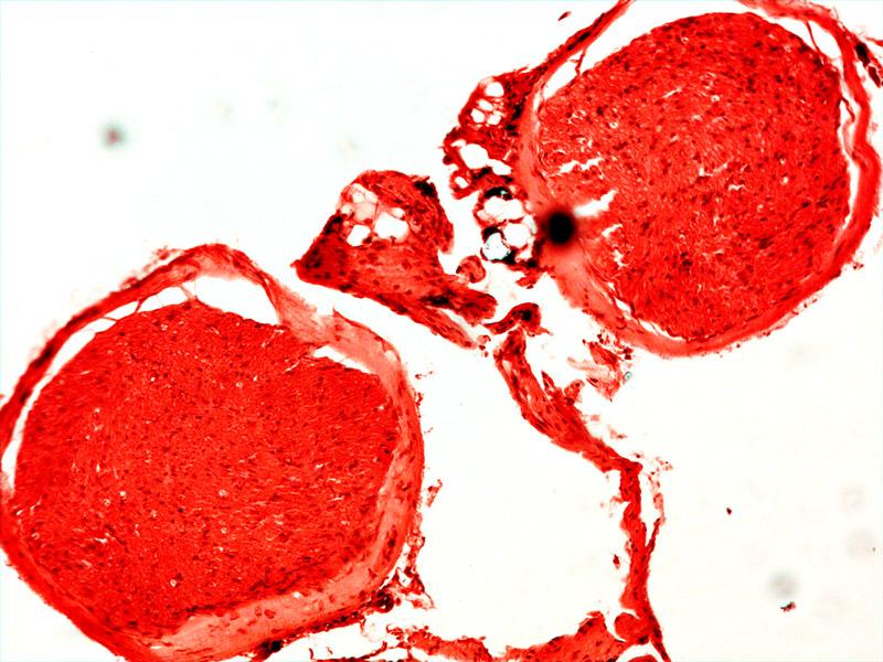 Вена человека под микроскопом Sigeta Biogenic: кратность 100x, камера Sigeta UCMOS 5.1 Mp